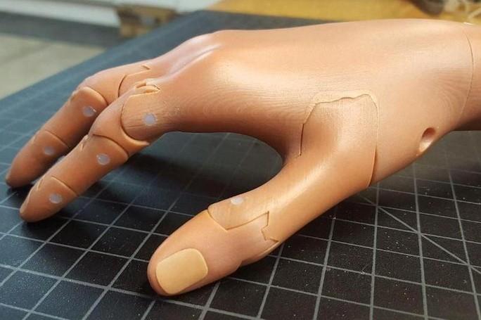 Протез руки